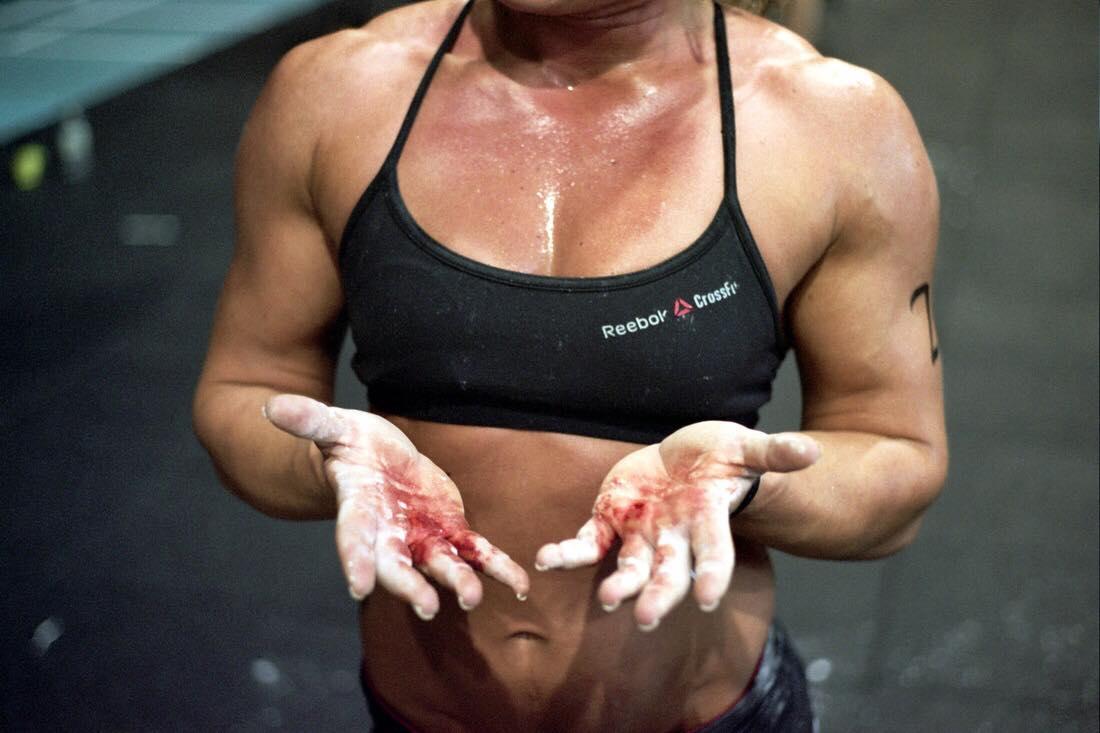 Nature et fréquence des blessures dans la pratique du CrossFit (traduction)